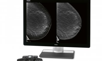 Hologic – Intelligent 2D imaging technology