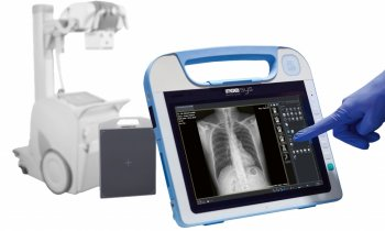 Roesys – X Vision go – Lightweight mobile DR Retrofit for ICU and RAD