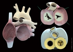 Photo: The first human implantations of  bioprosthetic artificial hearts