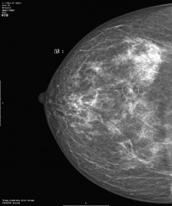 Photo: VuCOMP takes lead in aiding diagnosis of breast cancer