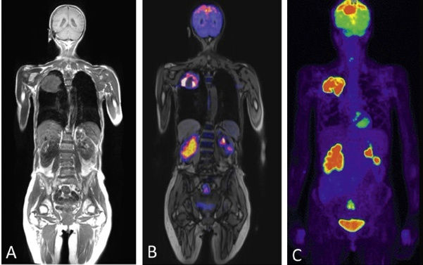 Figure 2: PET/MR hybrid whole-body imaging of a female patient with known...