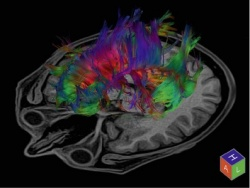 Tractography of the brain acquired with a DTI scan in 49 directions