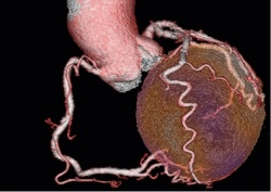 3D image fusion of SPECT-Perfusion and CT-coronary anatomy. With lind...