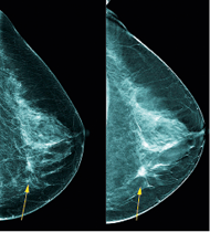 Mortality rates from breast cancer can be reduced by screening