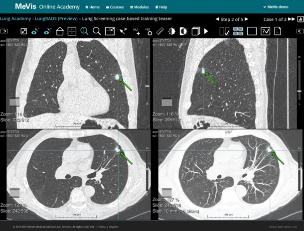 Training of interpretation and management of lung cancer screening images in...