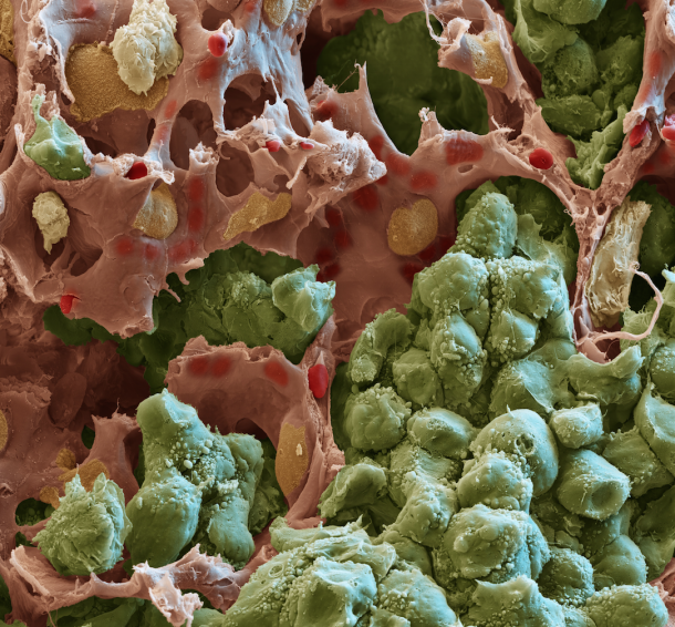 Scanning electron microscopic image of a lung metastasis: Tumor cells (green)...