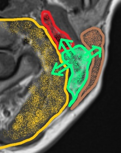 Compression effect (green arrows) of lesions in the posterior cervical space...