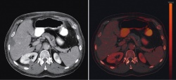 A control study of a liver metastasis after microwave ablation treatment: A...