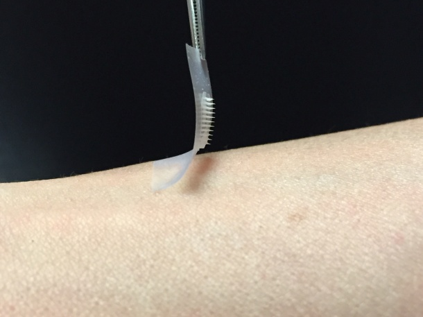 The smart insulin patch could be placed anywhere on the body to detect...