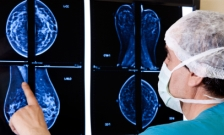 An in-depth trial shows that benefits of mammographic screening are likely to...
