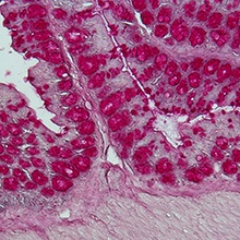 The intestinal microbiota (shown here is a histological staining of a colon...