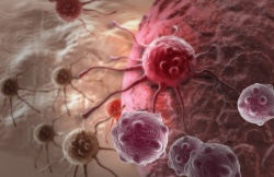 A probe enables tumors to be investigated using complementary imaging...