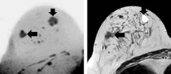 Images show example of a screening-detected lesion in a 51-year-old breast...