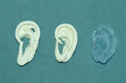 Photo: Techniques help surgeons carve new ears