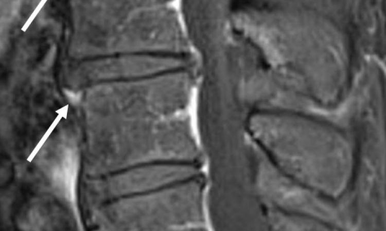 Auf den Spuren des Rheumas an der Wirbelsäule auf healthcare-in ...
