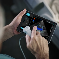 Sonosite iViz is a highly portable ultrasound augmented with mobile computing...