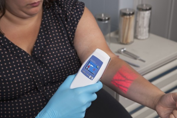 Blood drawing for patients with hard-to-reach veins just became a lot easier...