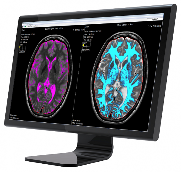 Photo: SyMRI to be studied as a technology to characterize brain tumors
