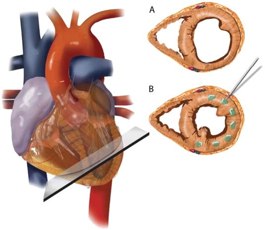 The implantation of Algisyl Hydrogel into the heart muscle modifies the wall...