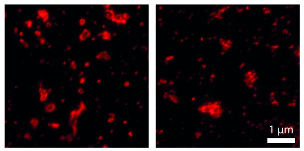 Protein labeling with aptamers (left) better displays the shape of endosomes...