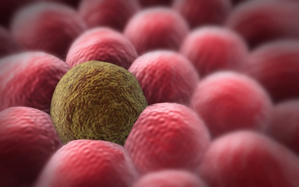 Photo: Stopping tumour cells killing surrounding tissue