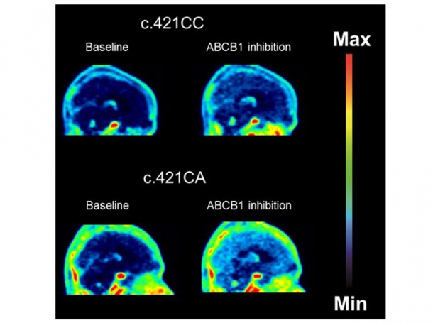 Brain distribution of a dual ABCB1/ABCG2 substrate in a person without (top...