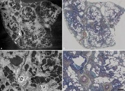High and lower power images comparing the same area of lung tissue imaged by...