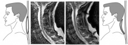 The MRI image on the left shows what the MRI scan can reveal when coil is only...
