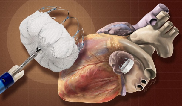The Watchman device prevents blood clots from forming in the left atrial...