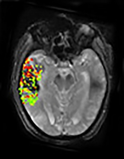 This image combines pre- and post-treatment scans from the same patient....