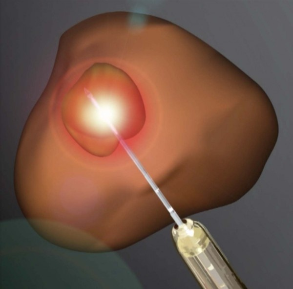 An illustration of laser ablation to treat prostate cancer.