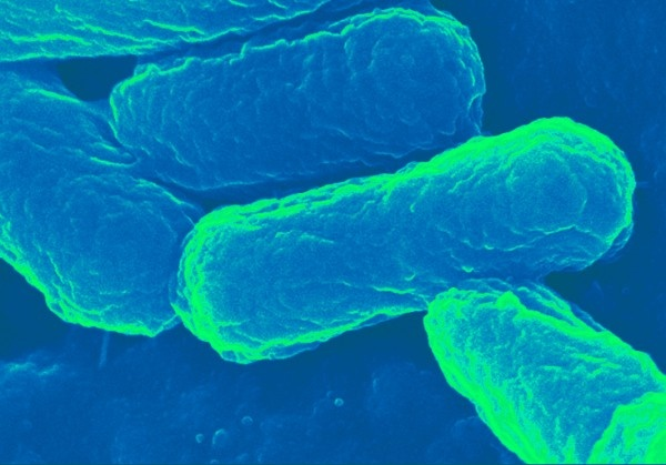 Researchers have developed an E. coli-based transport capsule, the downloadable...