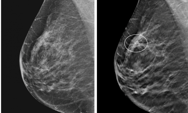 Controversies And Practices In Breast Cancer Screening