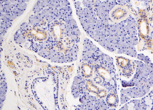 In this lab stain, the small orange-spotted cell on the far left shows a nerve...
