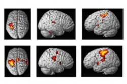 fMRI during simple motor task; healty volunteer 8top) and PP MS subject...