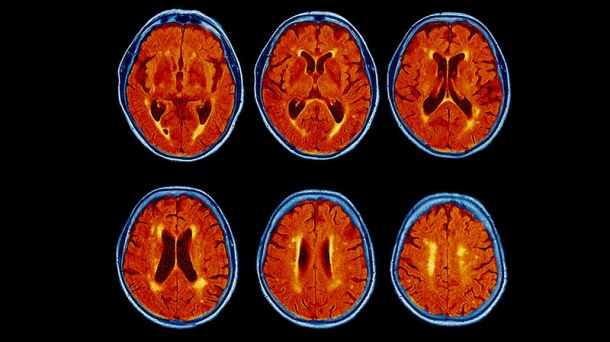 A colored magnetic resonance imaging (MRI) scans of the brain of a 76-year-old...