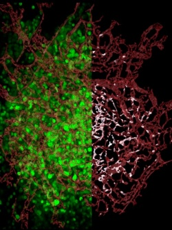 On the left, stained red blood vessels weave between florescent green tumor...
