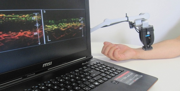A newly developed tissue scanner allows looking under the skin of psoriasis...
