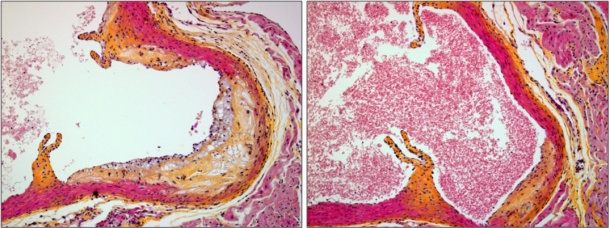 Two images showing a cross section of a mouse aortic blood vessel: the control...