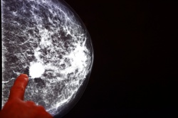 Combined with Mammography, a new breath test could raise the effectiveness of...