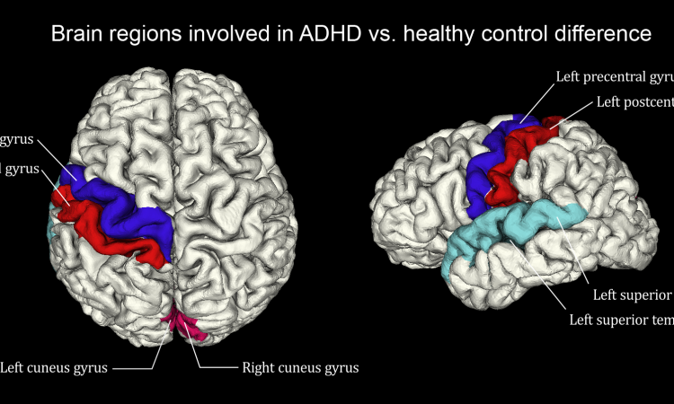 Mri Shows Brain Differences Among Adhd >> The Birth Of Psychoradiology