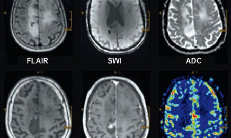 Wenn Das Gehirn Weiß Wird