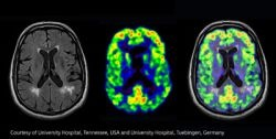 Photo: Worlds first human brain images scanned with a PET/MRI hybrid system