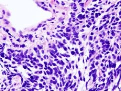 Photo: Study shows relation between LKB1 gene and lung cancer
