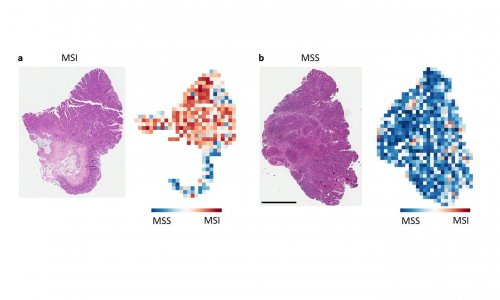Stomach And Colorectal Cancer Ai Identifyies Patients For Immunotherapy