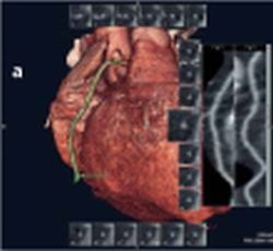 Fig. 4: Case examples for 3D heart construction with: a) heart frequency = 45 -...