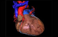 Photo: Computerised model of the heart to develop new therapies