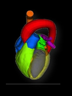 Photo: Aortic valve replacement in the third dimension
