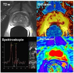 PET-MRI - The right system at the right time on healthcare ...