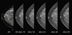 3-D Mammography (Breast Tomosynthesis)